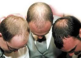 Mezotherápiával a hajhullás ellen